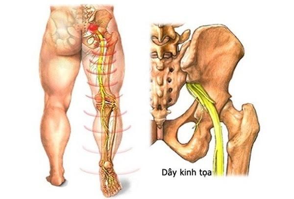 Đau từ thắt lưng xuống chân phải là bị bệnh gì?