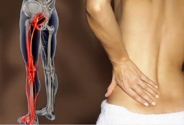 Đau từ thắt lưng xuống chân trái là bệnh gì?