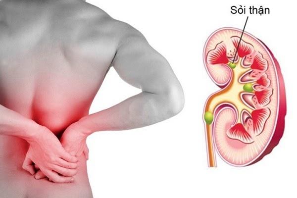 Đau vùng thắt lưng là bệnh gì