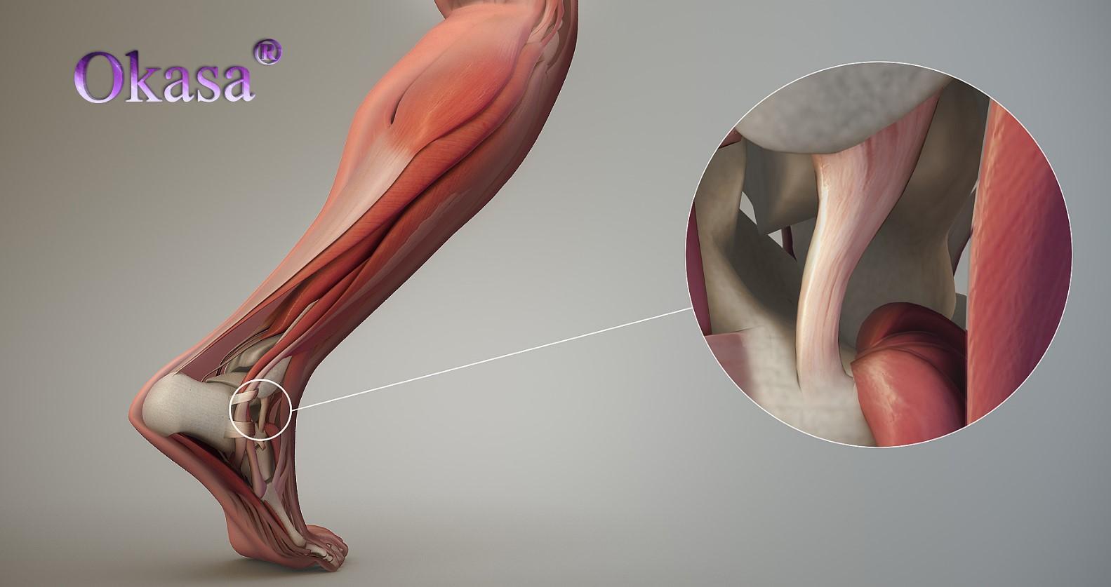 Phòng tránh bong gân và đứt dây chằng cổ chân