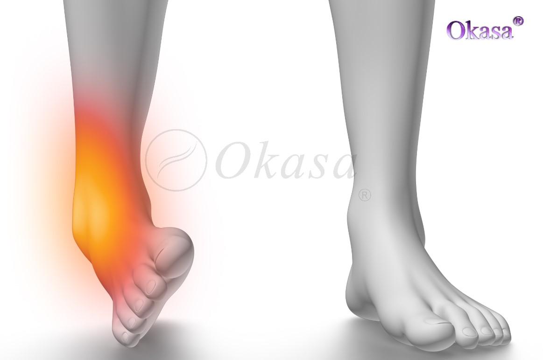 Thế nào là bong gân cổ chân?
