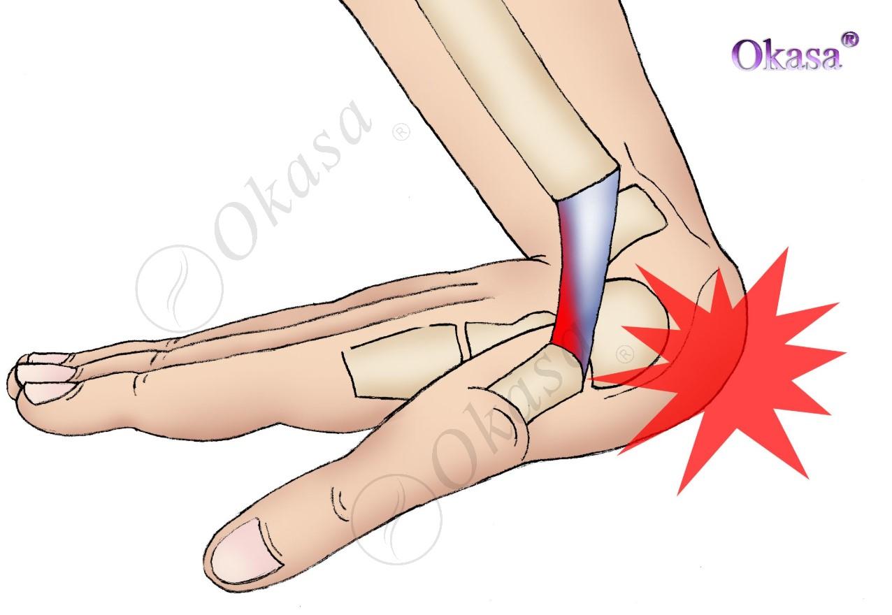 Hiểu về bong gân cổ tay, cổ chân