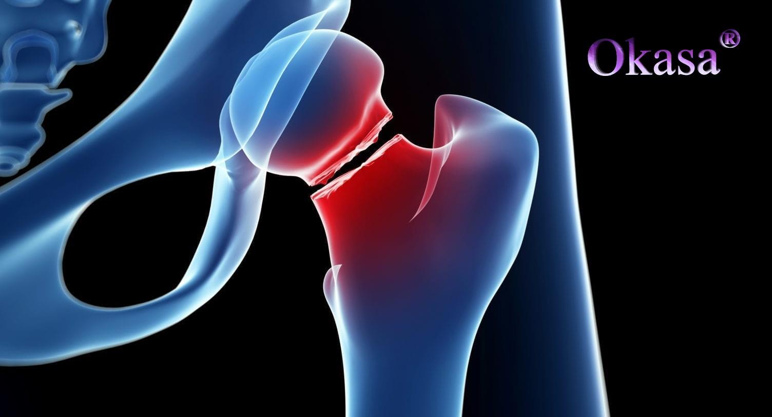 Trường hợp nào phải mổ khi bị gãy xương?