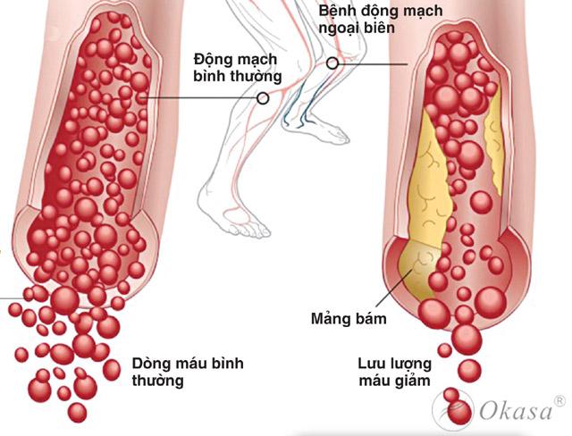 Chẩn đoán và điều trị bệnh động mạch biên chi dưới