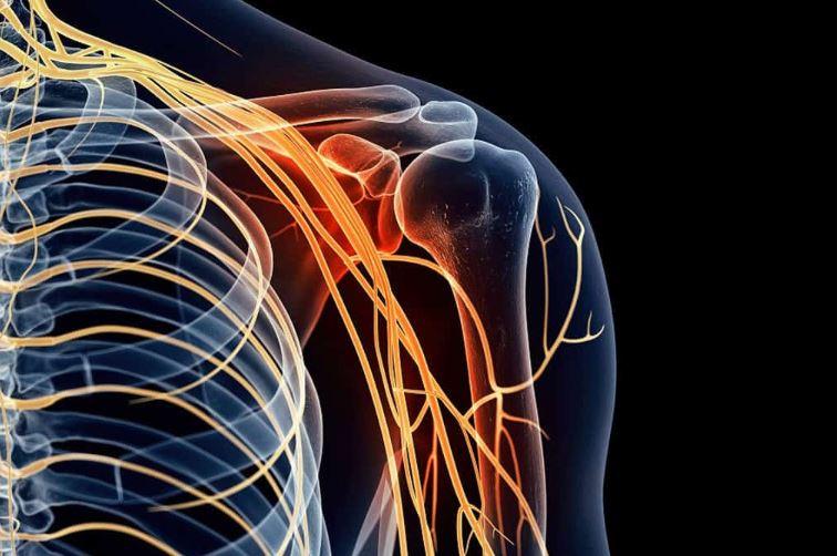 Những chấn thương vai thường gặp phải