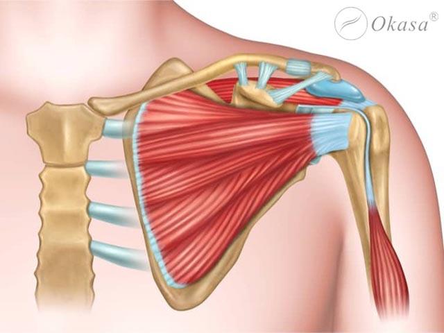 Nhận biết và điều trị gãy xương quai xanh