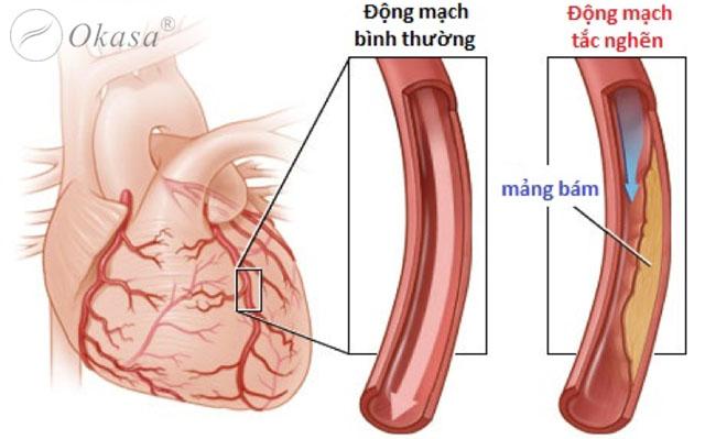 Dấu hiệu nhận biết và chẩn đoán xơ vữa động mạch