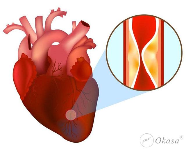 Dấu hiệu và chẩn đoán nhồi máu cơ tim cấp