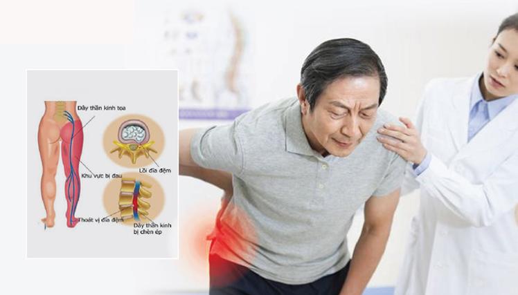Đau nhức từ mông xuống bắp chân là dấu hiệu của bệnh gì?