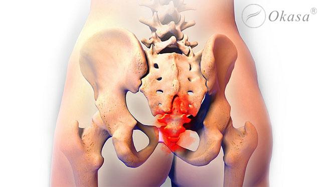 Đau xương cụt và cách massage bấm huyệt giảm đau