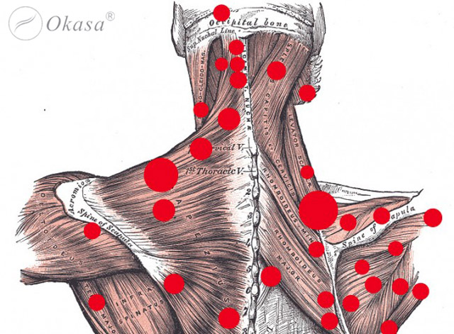 Điểm nút cơ ảnh hưởng đến các mô và hệ cơ quan