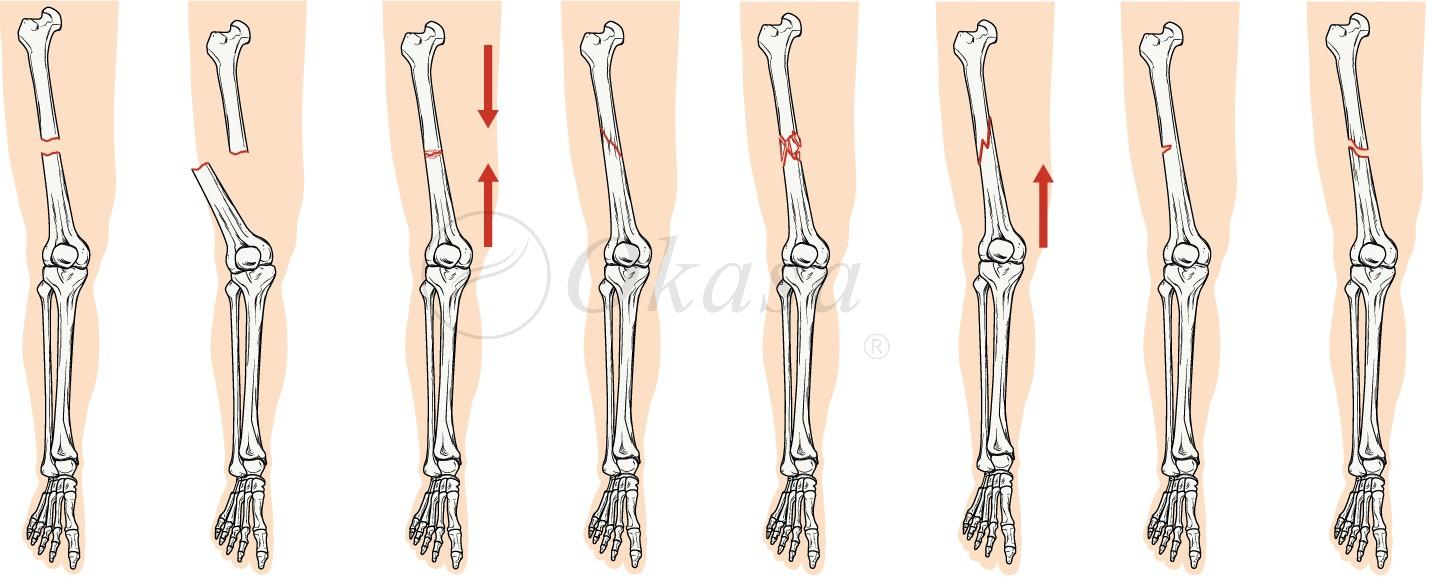 Chăm sóc người bệnh khi điều trị gãy xương