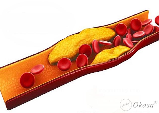 Hiểu về bệnh thiếu máu cơ tim