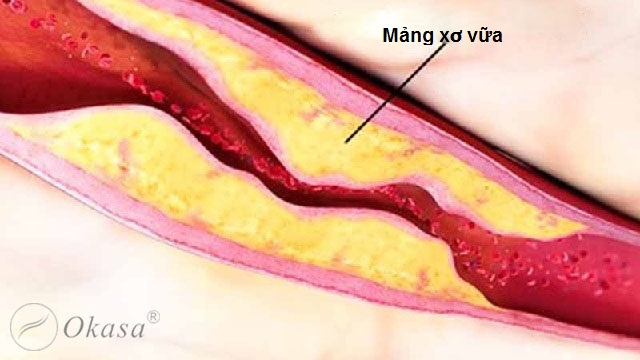 Hiểu về bệnh xơ vữa động mạch và vai trò của protein phản ứng C