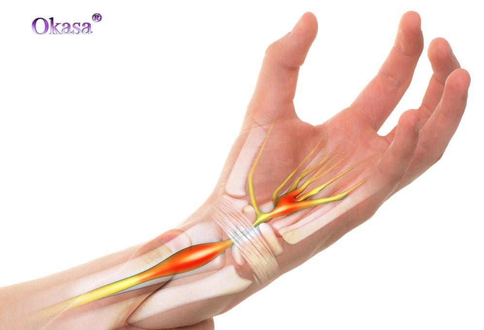Hội chứng ống cổ tay là gì?