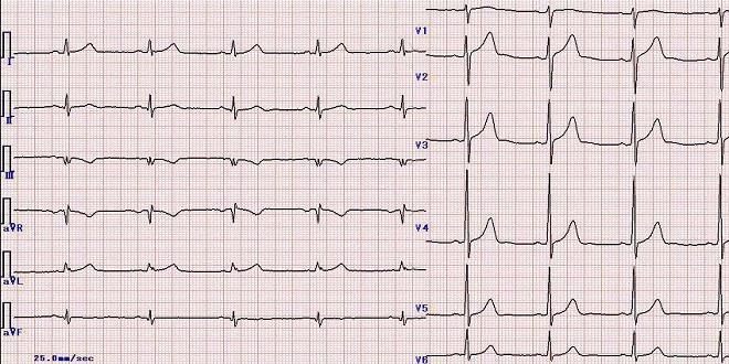 Hướng dẫn chẩn đoán và điều trị bệnh tim mạch bộ y tế
