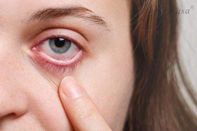 Huyết áp tăng cao gây hại cho mắt