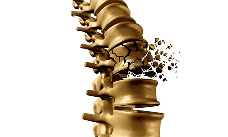Hiểu về bệnh loãng xương