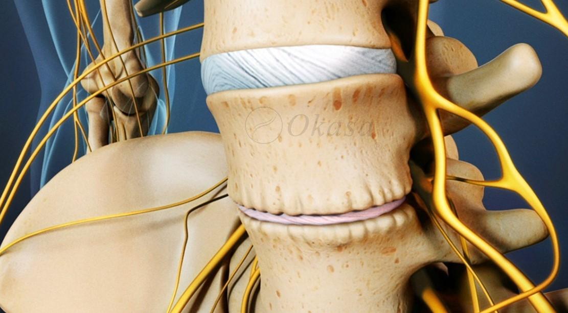 Hiểu về tình trạng loãng xương gây lún xẹp đốt sống