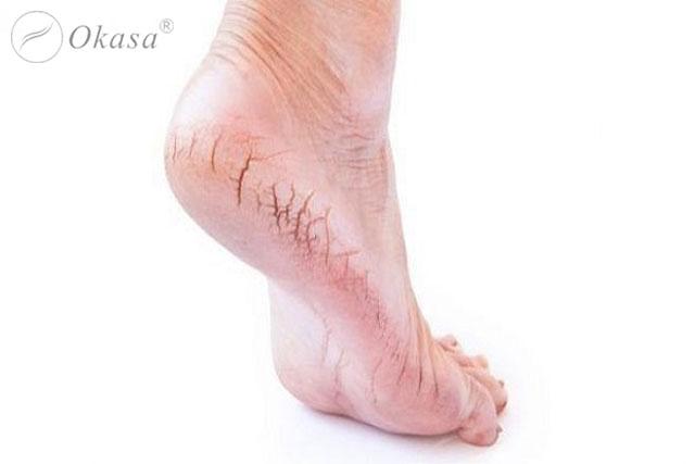 Massage và 6 mẹo giúp bạn không bị nhiễm trùng và nứt gót chân trong mùa đông