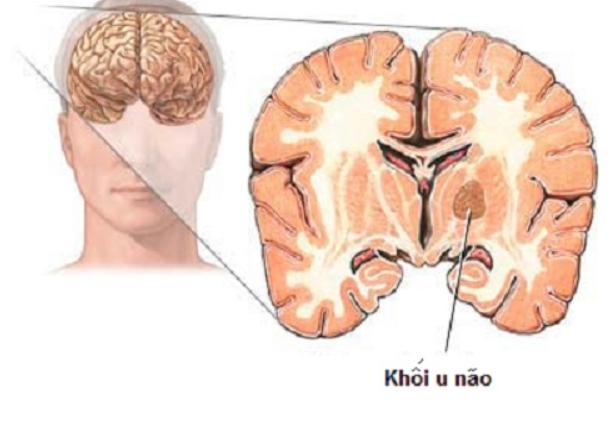 Nhức đầu liên tục nhiều ngày do đâu và cách điều trị