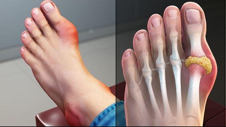 Những biện pháp giảm đau cho bệnh nhân gout
