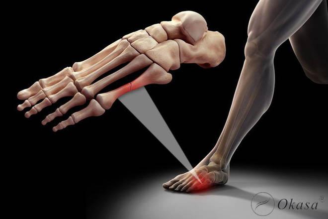 Những điều cần lưu ý khi chăm sóc người bị gãy xương bàn chân