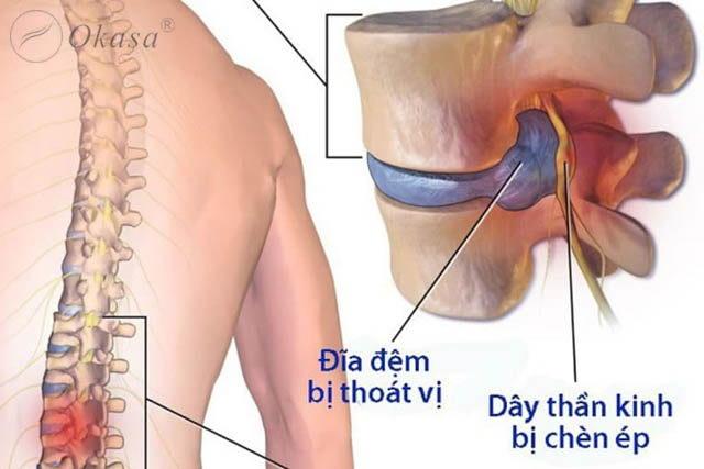 Phương pháp điều trị thoát vị đĩa đệm lưng