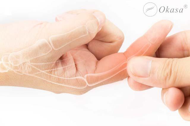 Phương pháp điều trị viêm khớp ngón tay