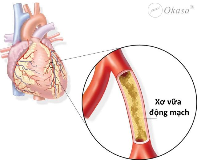 Phương pháp điều trị xơ vữa động mạch
