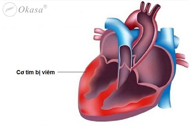 Một số bệnh viêm cơ tim thường gặp