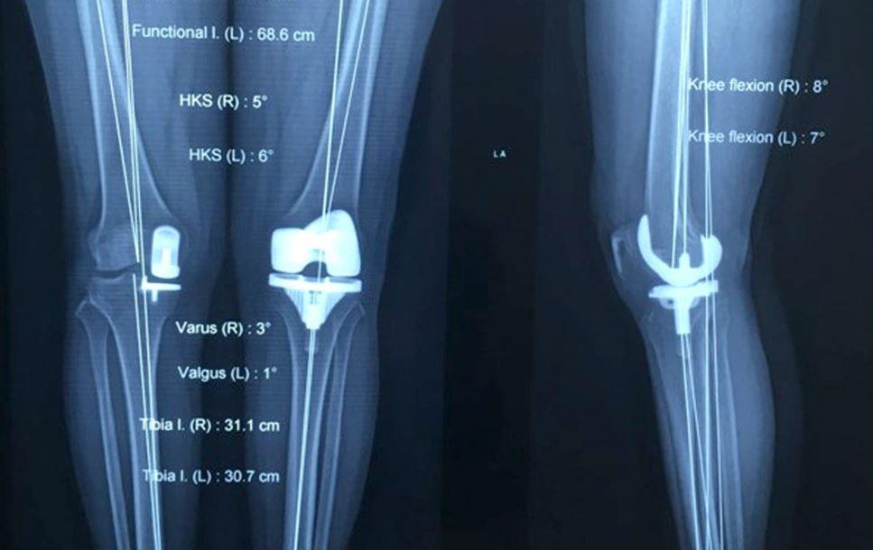 X-quang giúp chẩn đoán chính xác các bệnh lý về khớp gối