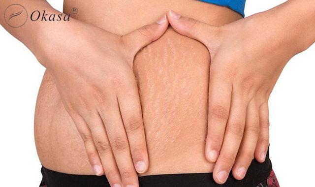 3 hỗn hợp massage trị rạn da cho chị em phụ nữ