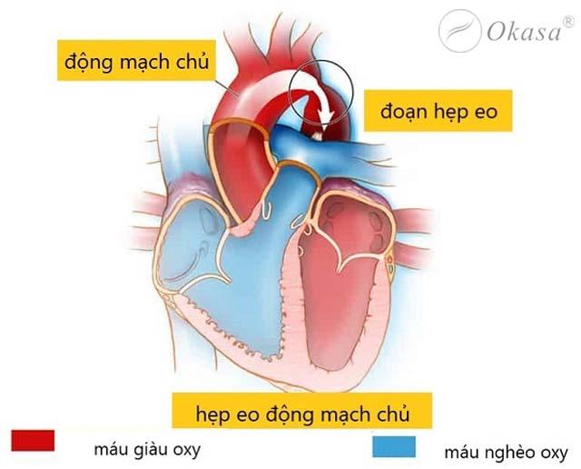 Hẹp eo động mạch chủ khiến huyết áp tăng