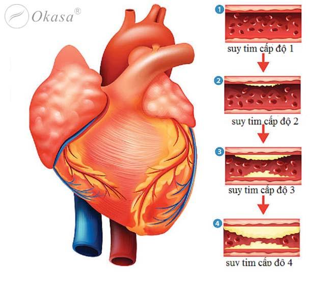 Hiểu về bệnh suy tim cấp