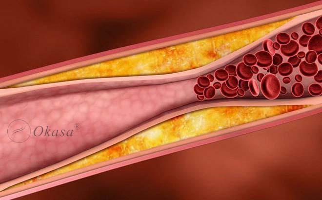 Hiểu về bệnh xơ vữa động mạch vành?