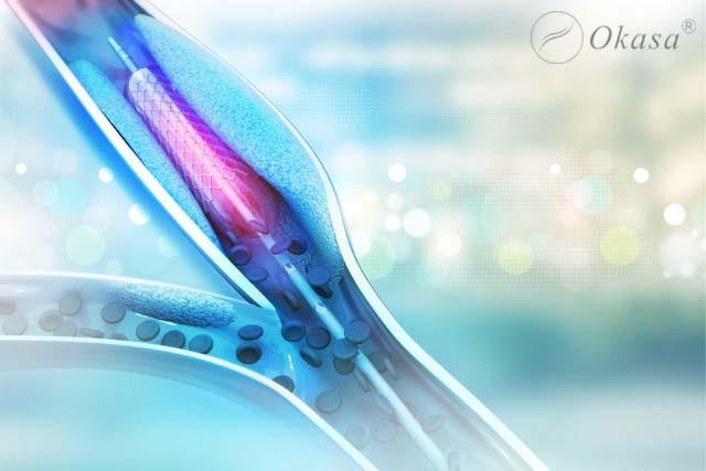 Kỹ thuật nong mạch vành
