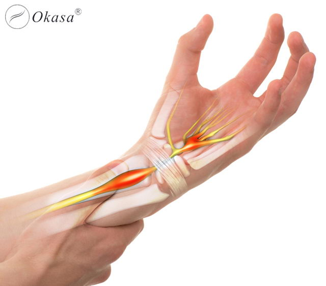Liệu pháp massage điều trị hội chứng ống cổ tay