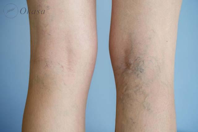 Tình trạng huyết khối tĩnh mạch sâu ở chân