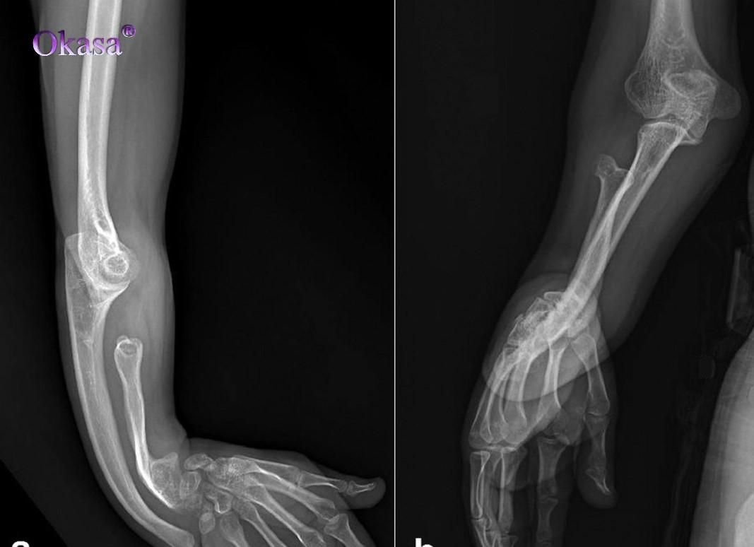 Phân biết thiếu xương và loãng xương