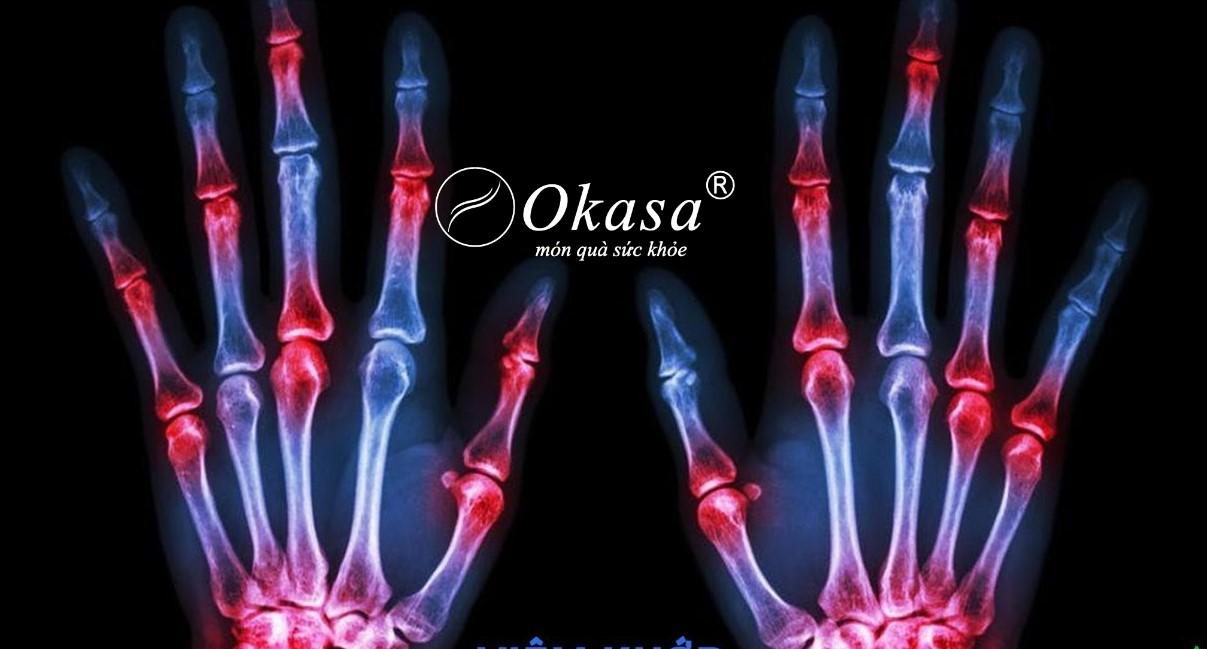 Tìm hiểu bệnh viêm thoái hoá khớp ngón tay