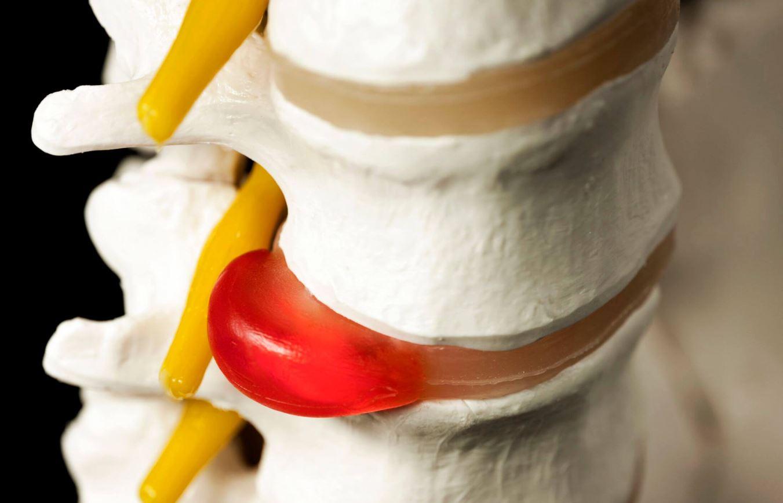 Những điều cần biết khi điều trị thoát vị đĩa đệm cổ