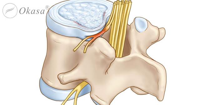 Thoát vị đĩa đệm lưng gây chèn ép rễ thần kinh