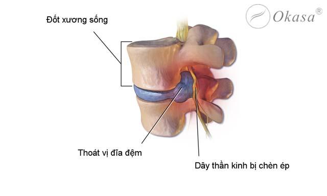 Thoát vị cột sống gây chèn ép rễ thần kinh