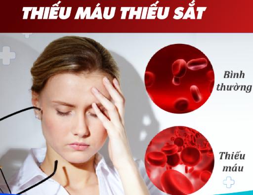 Tình trạng thường xuyên đau đầu là triệu chứng của bệnh gì?