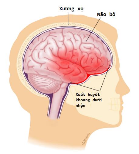 Triệu chứng đau nửa đầu sau gáy