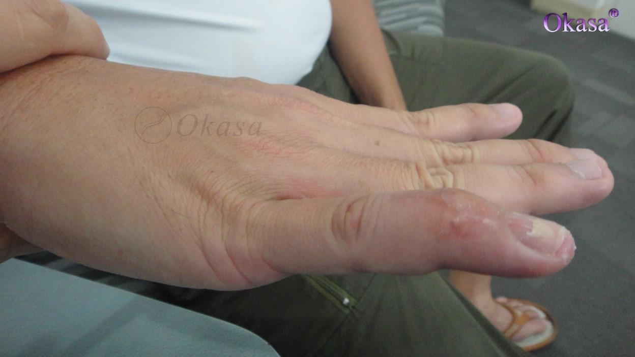 Viêm bao gân gấp ngón tay là gì ?