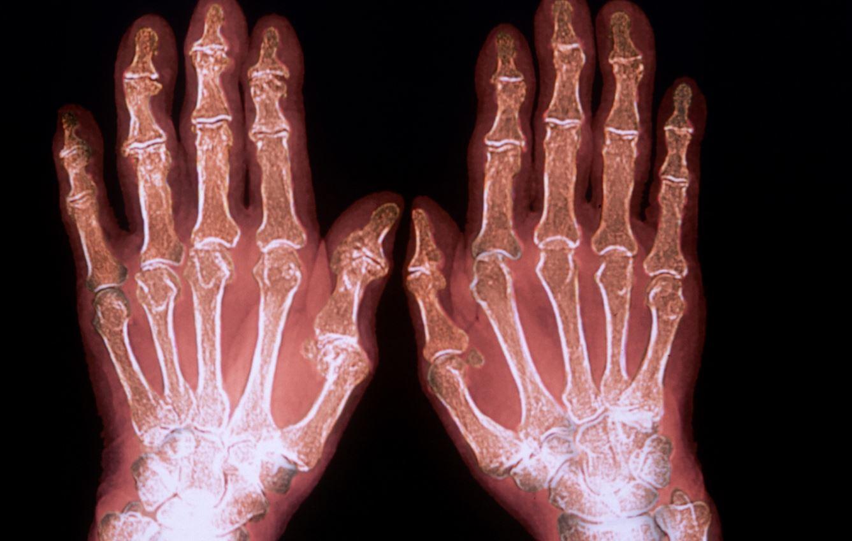 Bệnh viêm đa khớp: Nguyên nhân và triệu chứng