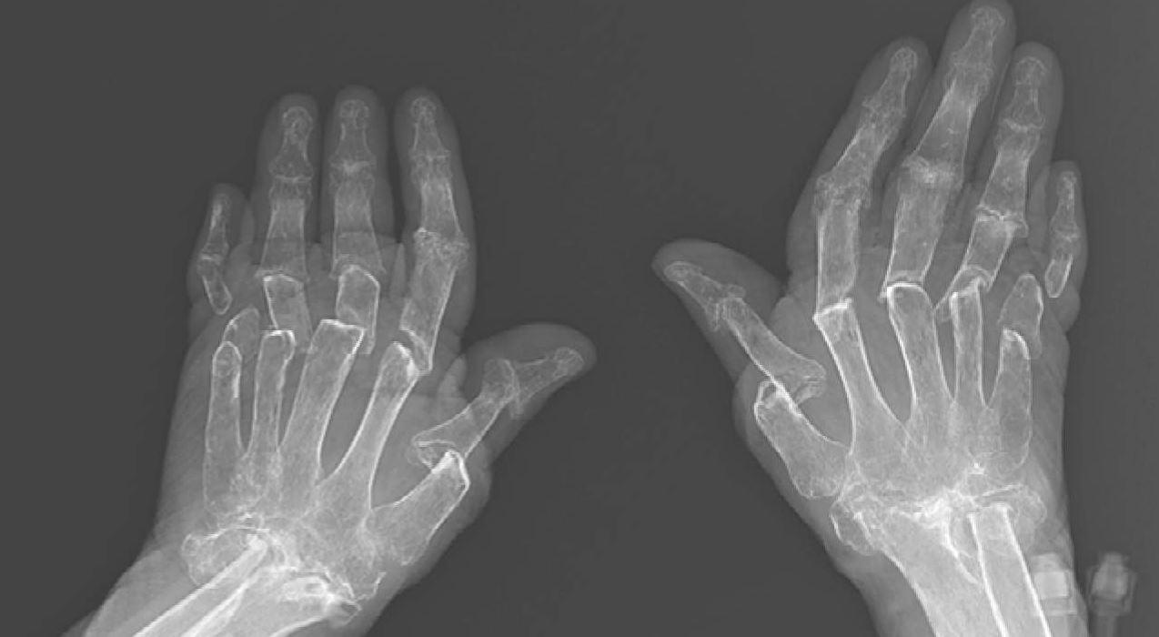 Viêm khớp dạng thấp và diễn biến của bệnh