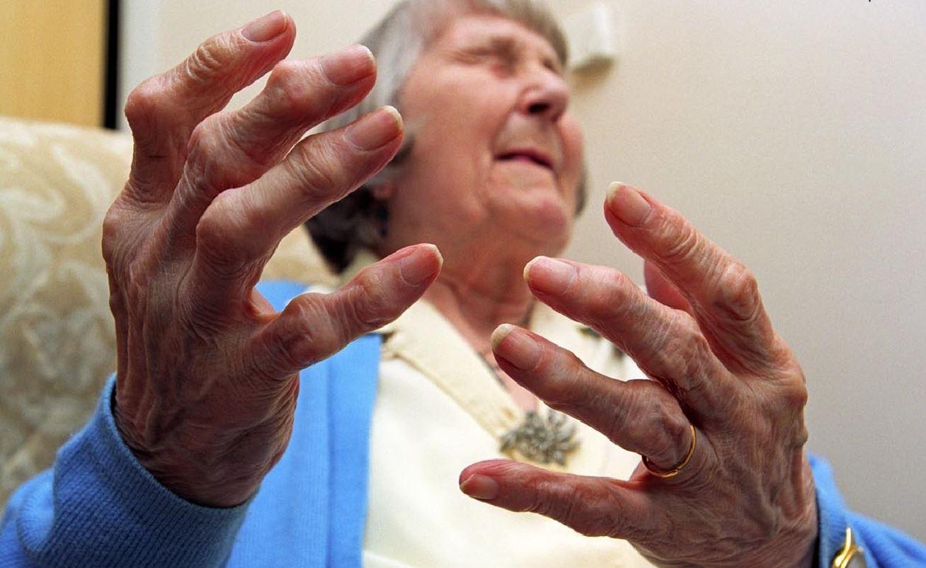 Những lưu ý cần thiết cho người bị viêm khớp dạng thấp